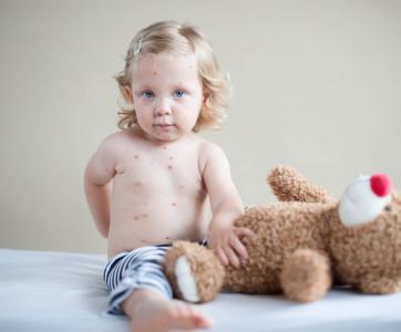 petite fille atteinte de varicelle